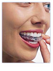 Irvine Lake Dental - Dentist, Invisalign, Clear Braces
