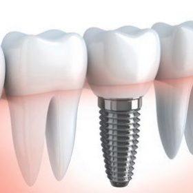 implant2-300x283