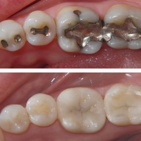 composite-fillings-3